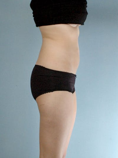 Liposuction Gallery - Patient 20909779 - Image 1