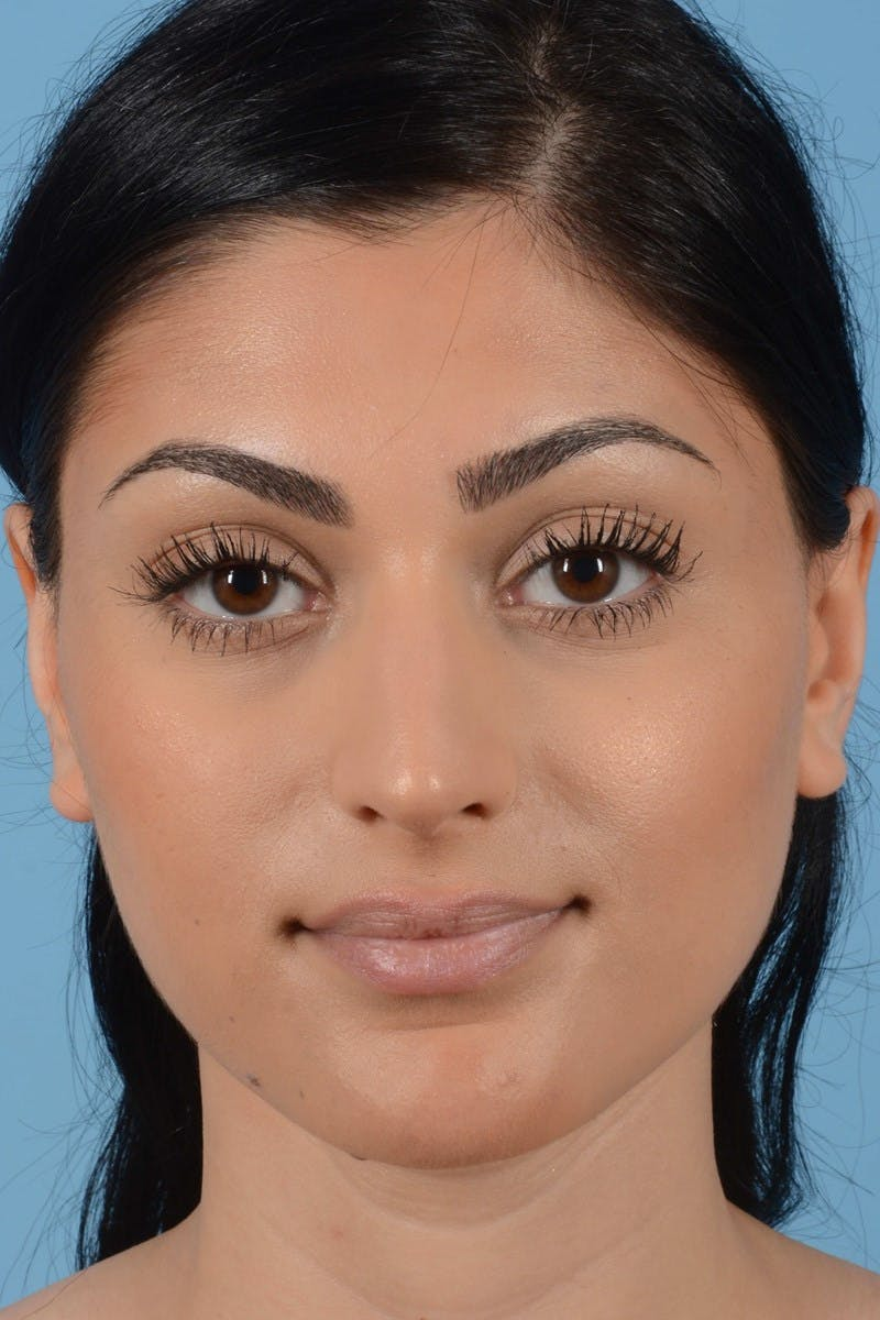 Rhinoplasty Gallery - Patient 20909783 - Image 3