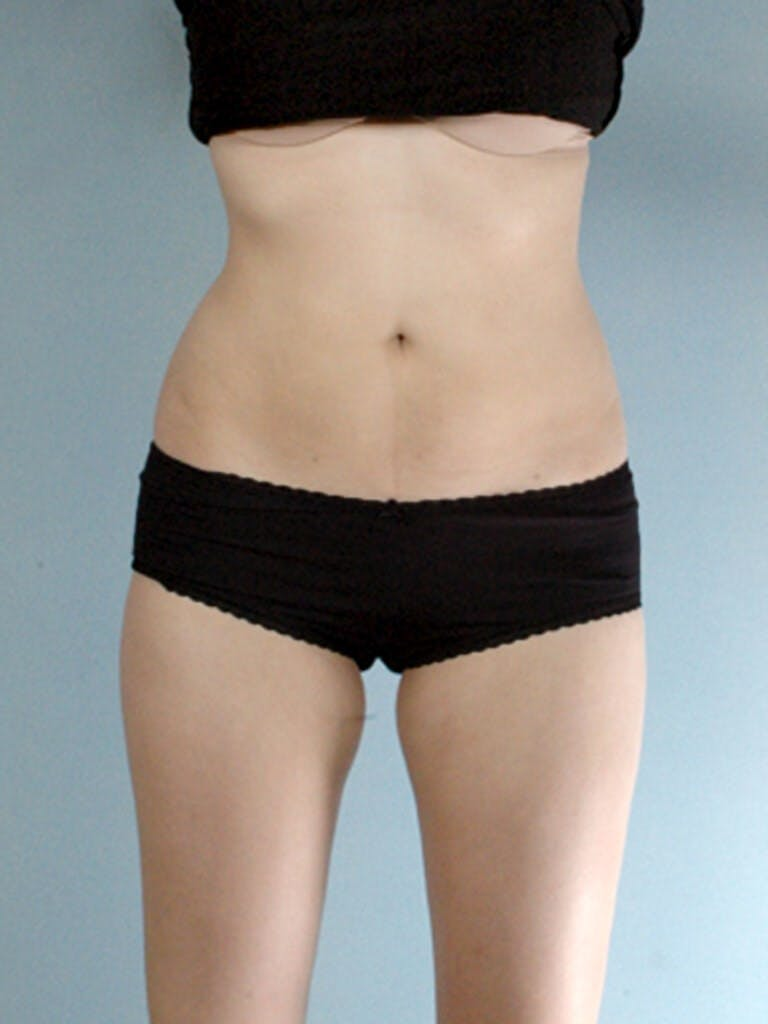Liposuction Gallery - Patient 20909779 - Image 3