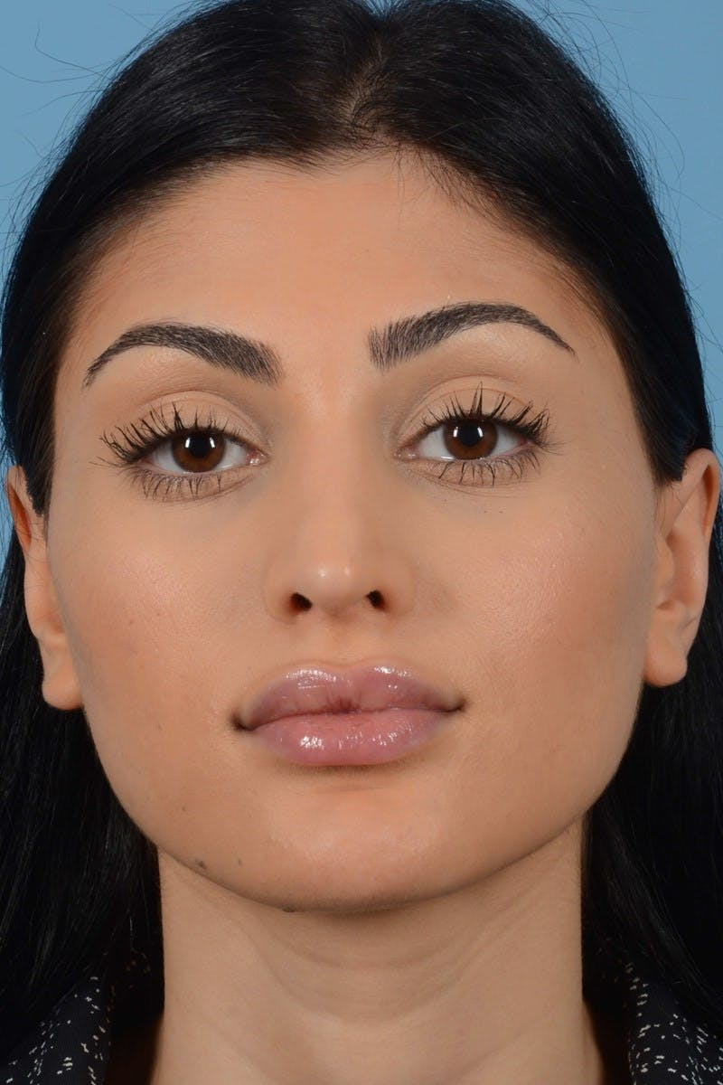 Rhinoplasty Gallery - Patient 20909783 - Image 4