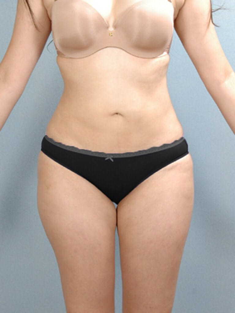 Liposuction Gallery - Patient 20909779 - Image 4