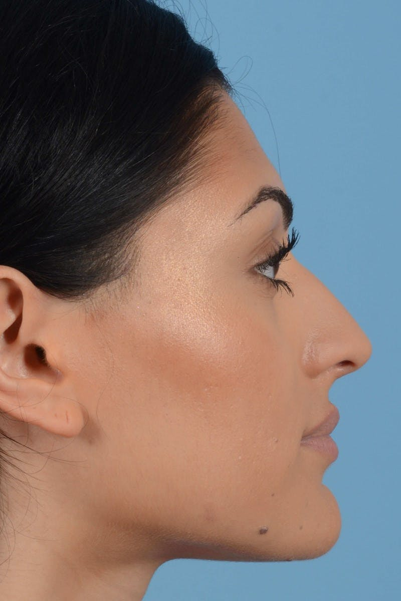 Rhinoplasty Gallery - Patient 20909783 - Image 5