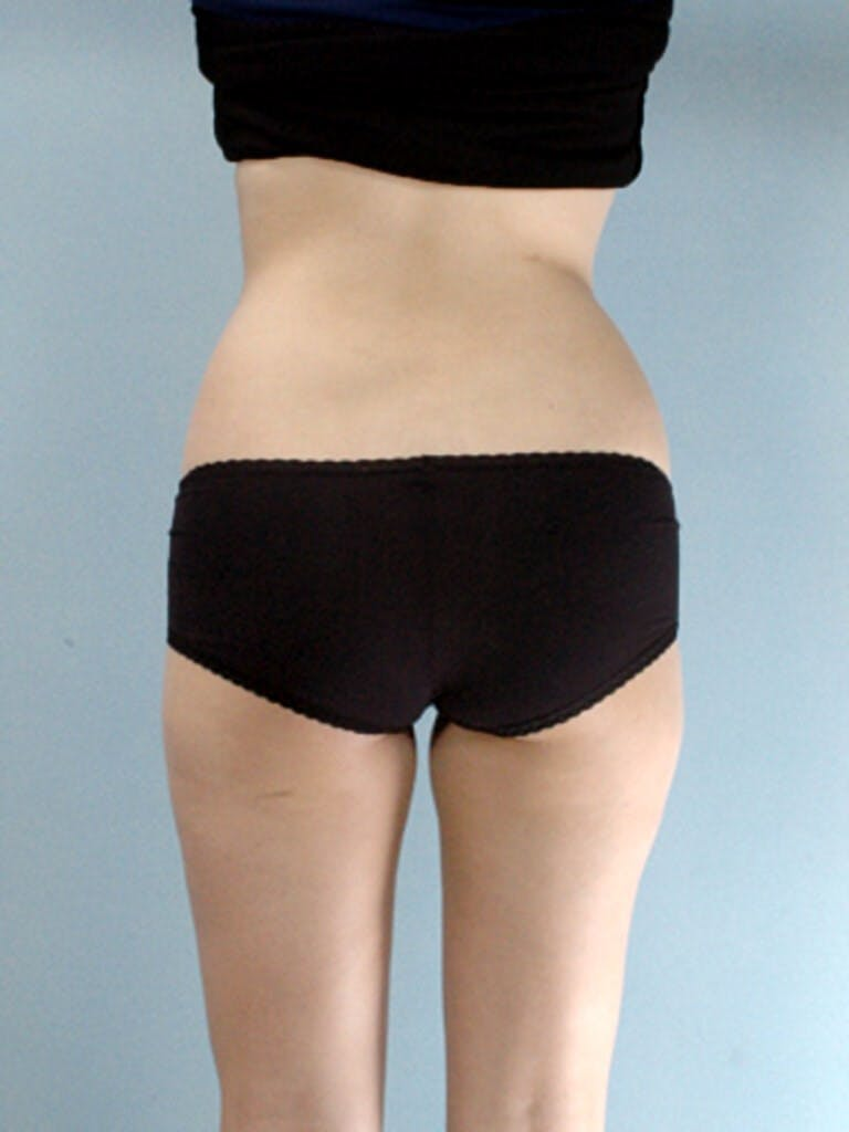 Liposuction Gallery - Patient 20909779 - Image 5