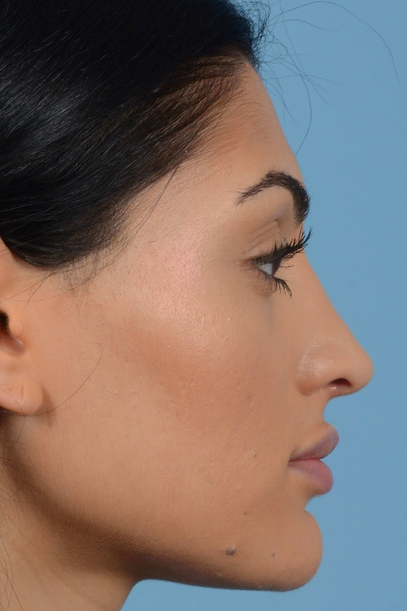 Rhinoplasty Gallery - Patient 20909783 - Image 6