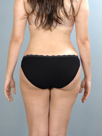 Liposuction Gallery - Patient 20909779 - Image 6