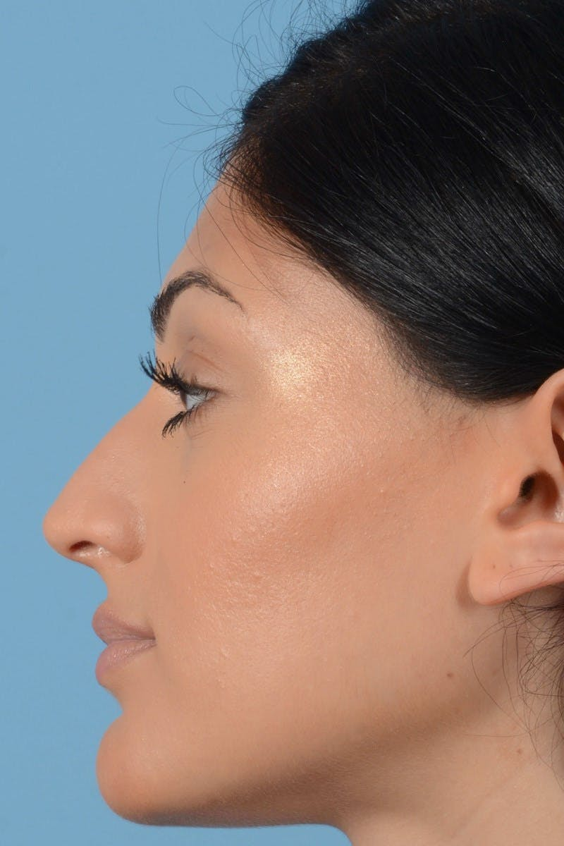 Rhinoplasty Gallery - Patient 20909783 - Image 7