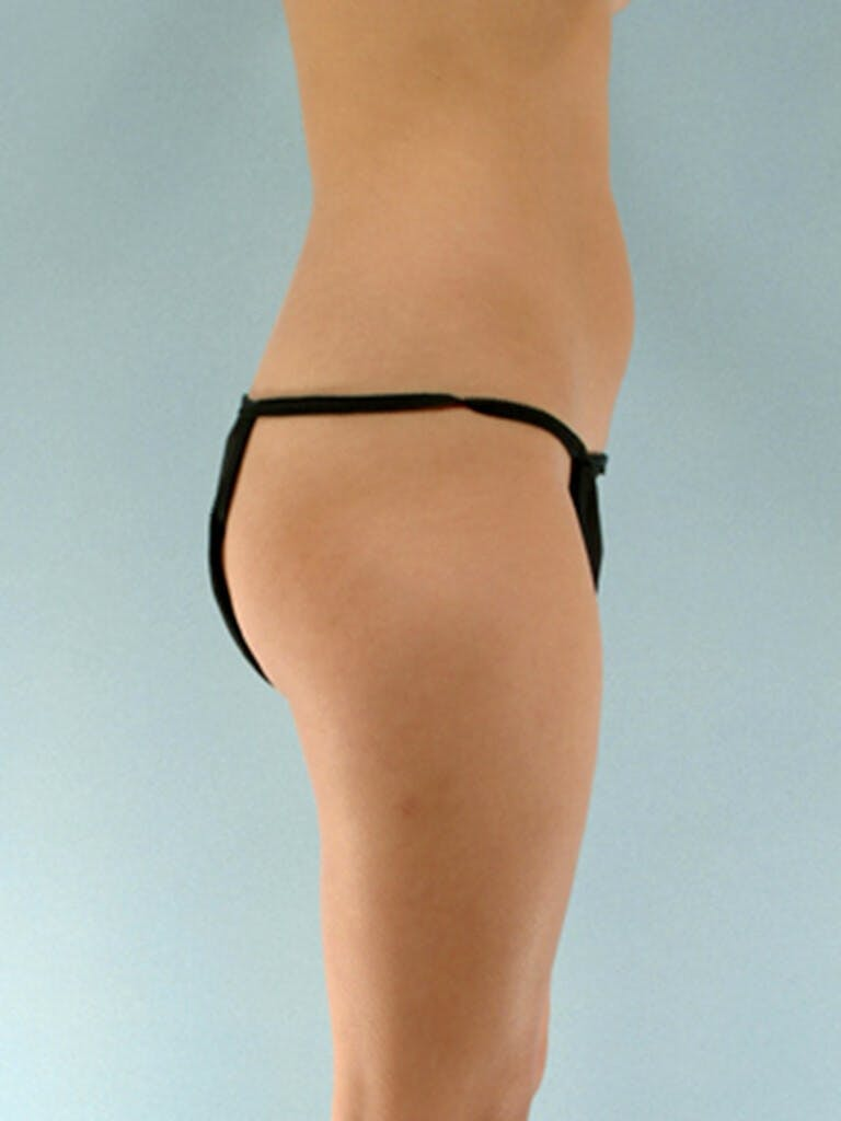 Liposuction Gallery - Patient 20909784 - Image 1
