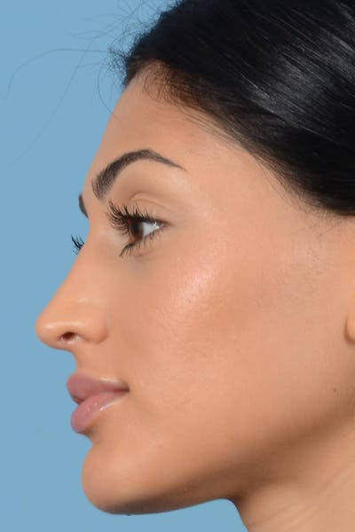 Rhinoplasty Gallery - Patient 20909783 - Image 8