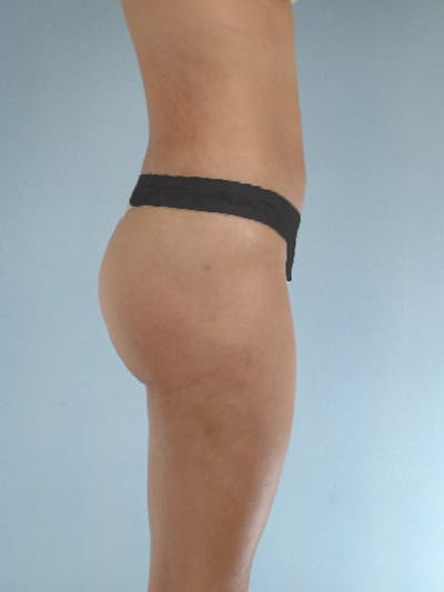 Liposuction Gallery - Patient 20909784 - Image 2