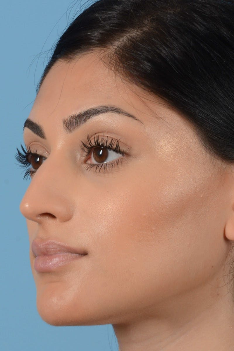 Rhinoplasty Gallery - Patient 20909783 - Image 9