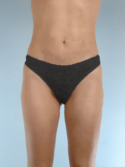 Liposuction Gallery - Patient 20909784 - Image 4
