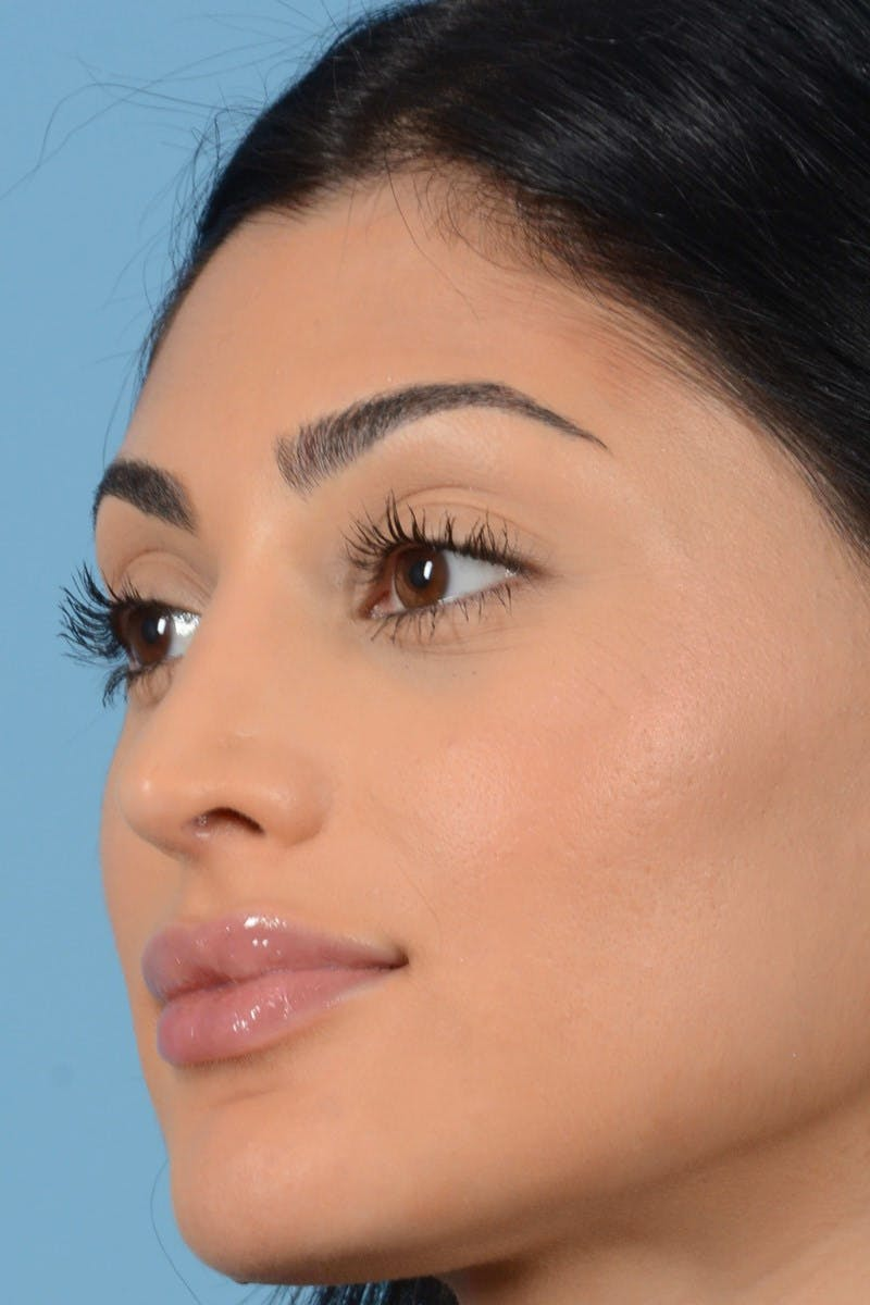 Rhinoplasty Gallery - Patient 20909783 - Image 10