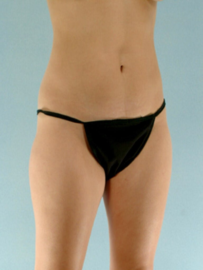 Liposuction Gallery - Patient 20909784 - Image 5
