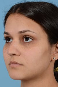 Rhinoplasty Gallery - Patient 20909786 - Image 1