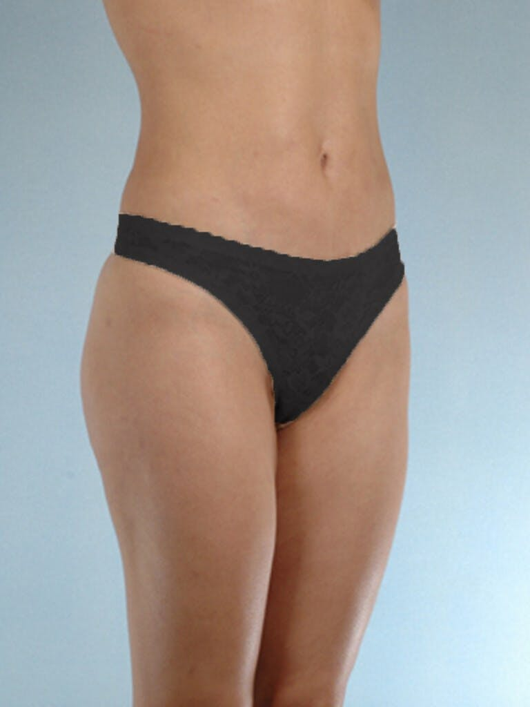 Liposuction Gallery - Patient 20909784 - Image 6