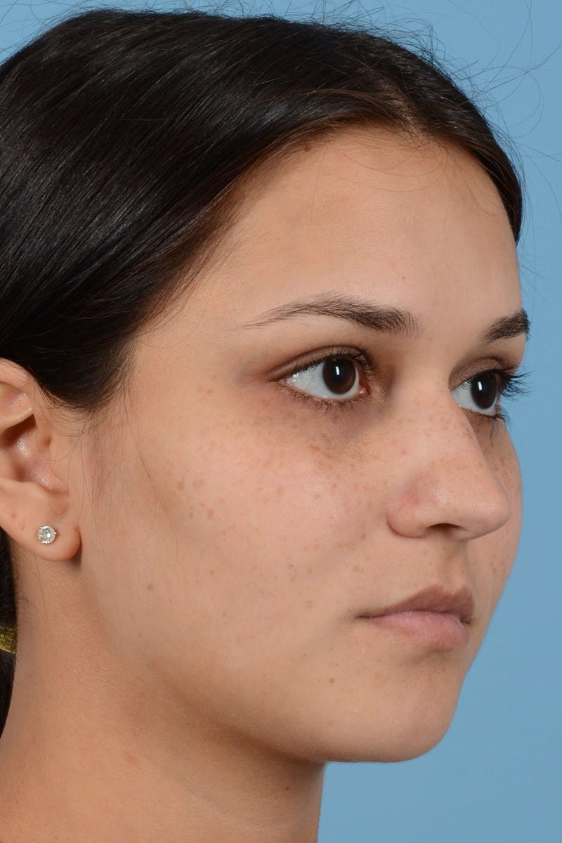 Rhinoplasty Gallery - Patient 20909786 - Image 3