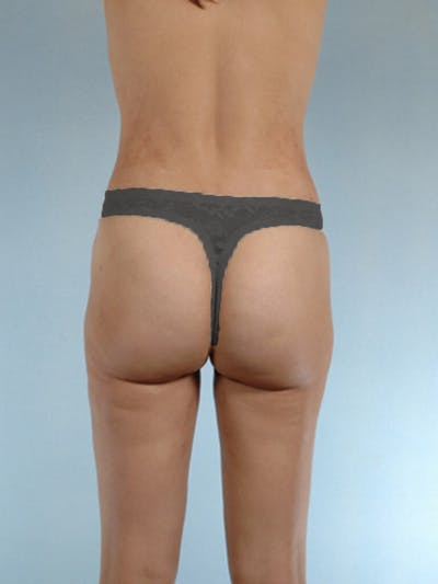 Liposuction Gallery - Patient 20909784 - Image 8