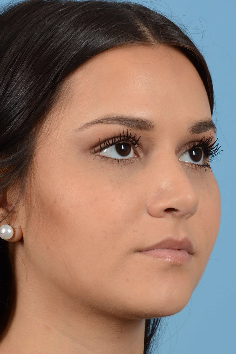 Rhinoplasty Gallery - Patient 20909786 - Image 4