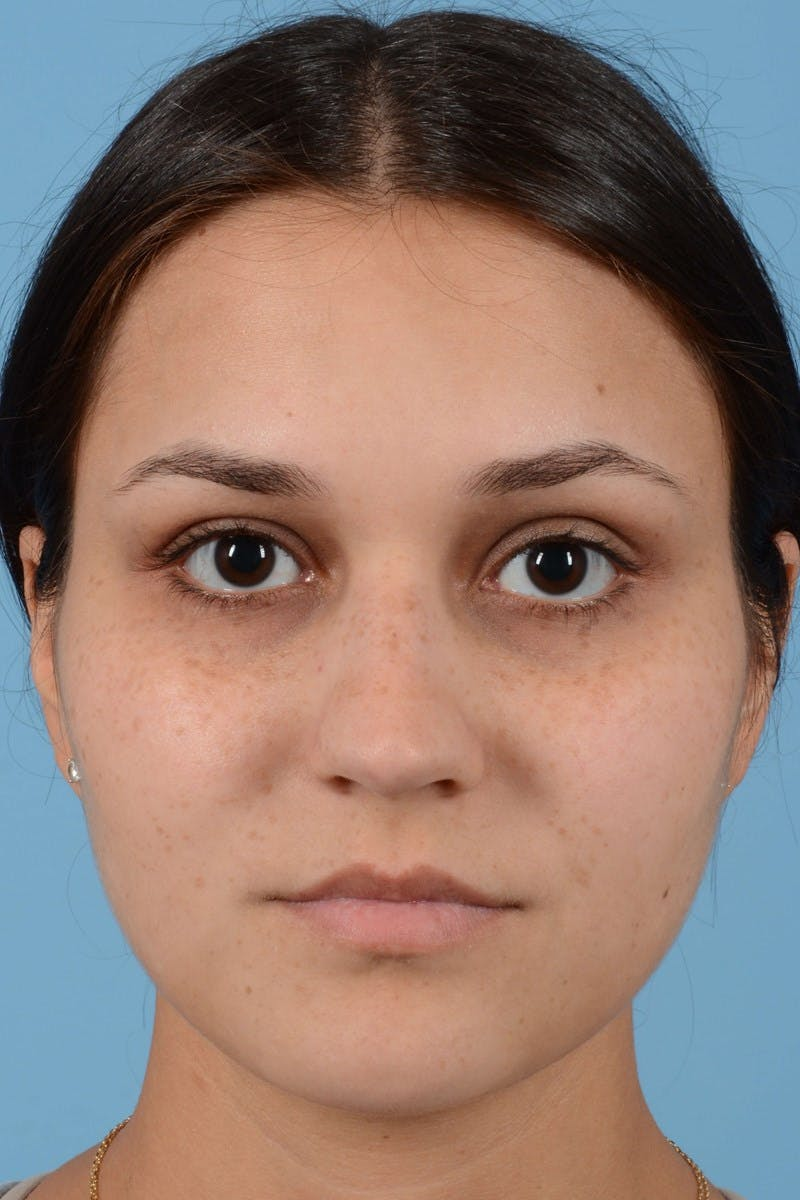 Rhinoplasty Gallery - Patient 20909786 - Image 5