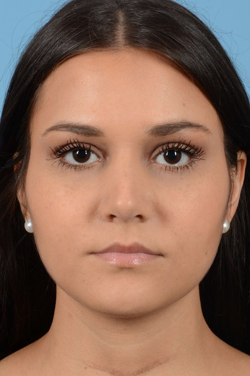 Rhinoplasty Gallery - Patient 20909786 - Image 6