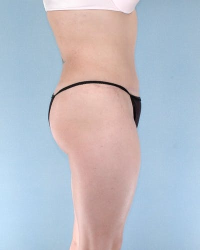 Liposuction Gallery - Patient 20909787 - Image 4