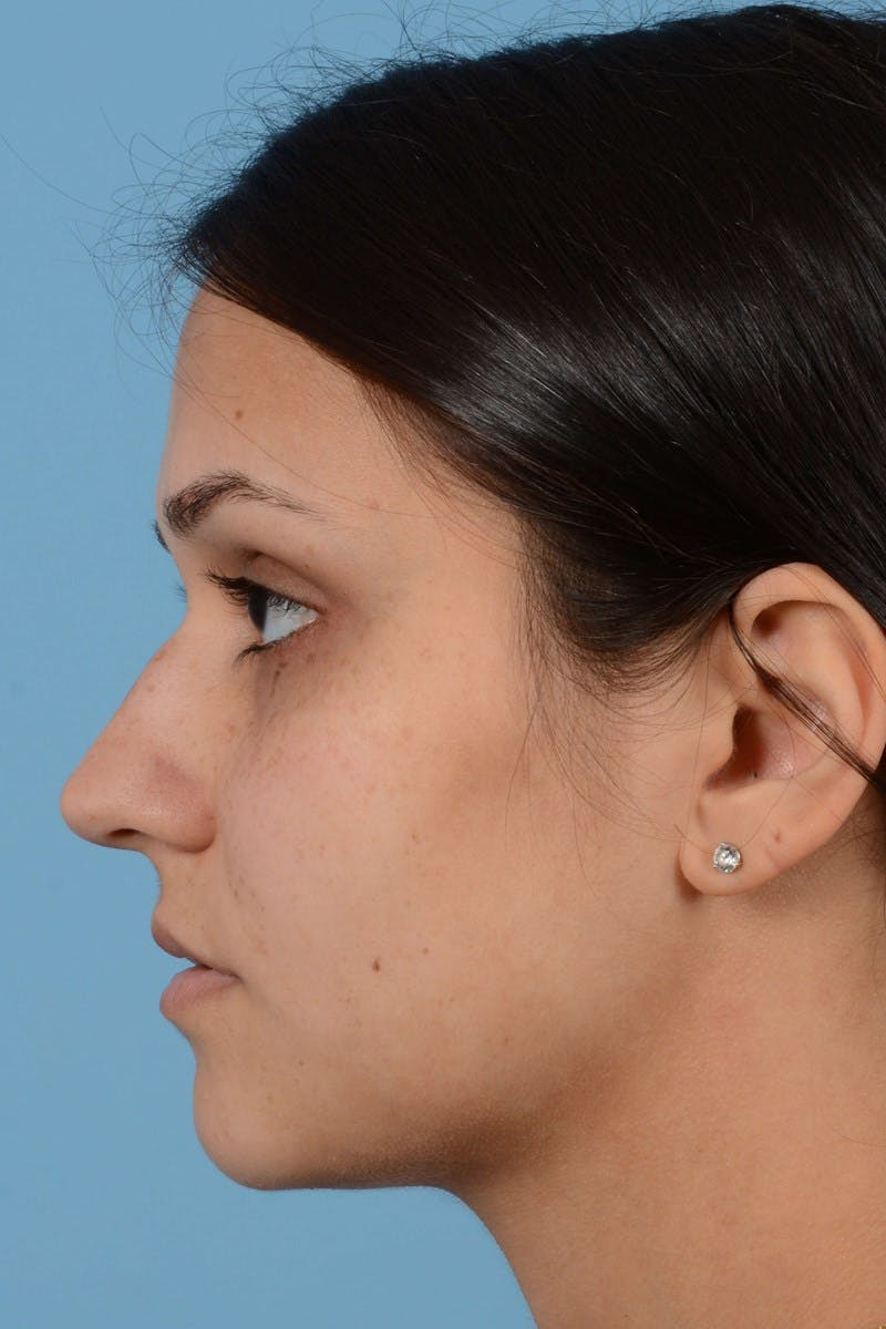 Rhinoplasty Gallery - Patient 20909786 - Image 7