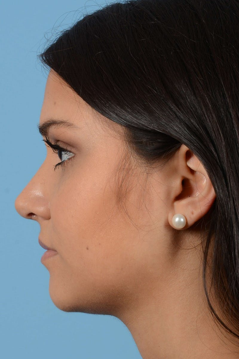 Rhinoplasty Gallery - Patient 20909786 - Image 8