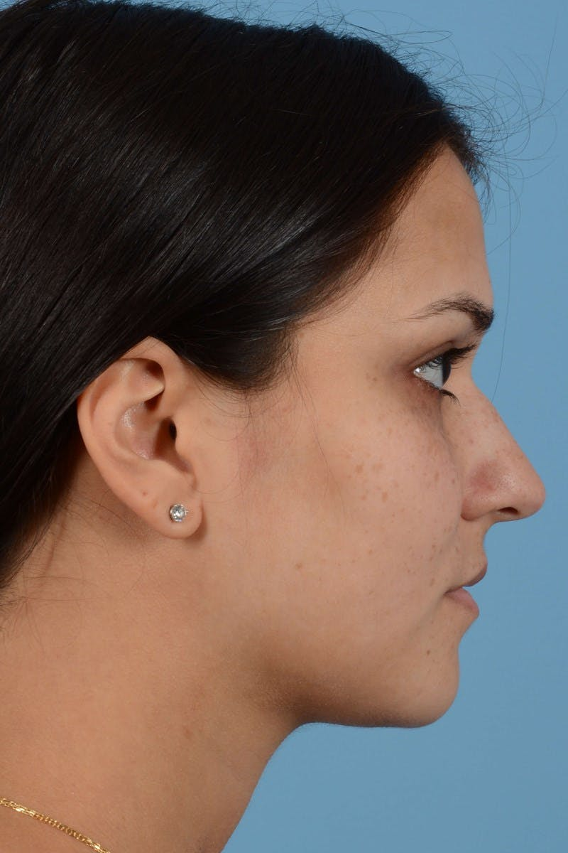 Rhinoplasty Gallery - Patient 20909786 - Image 9