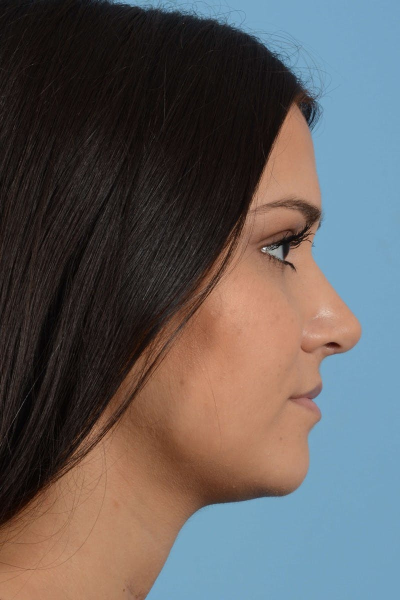 Rhinoplasty Gallery - Patient 20909786 - Image 10