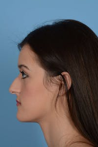 Rhinoplasty Gallery - Patient 20909797 - Image 1