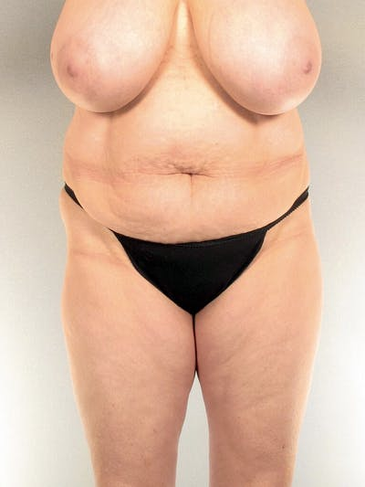 Liposuction Gallery - Patient 20909802 - Image 1