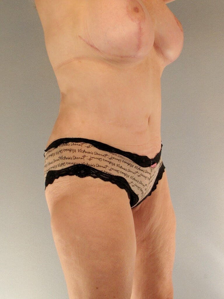 Liposuction Gallery - Patient 20909802 - Image 4