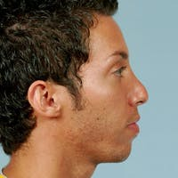 Rhinoplasty Gallery - Patient 20909804 - Image 1