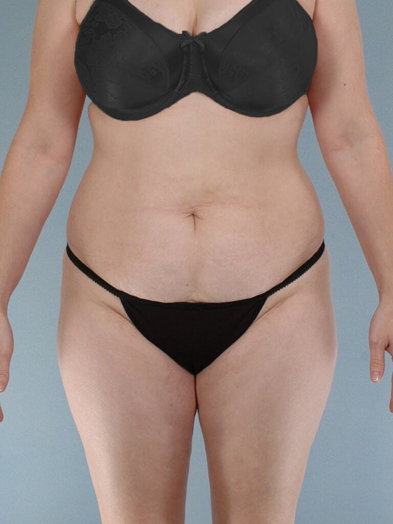 Liposuction Gallery - Patient 20909805 - Image 1