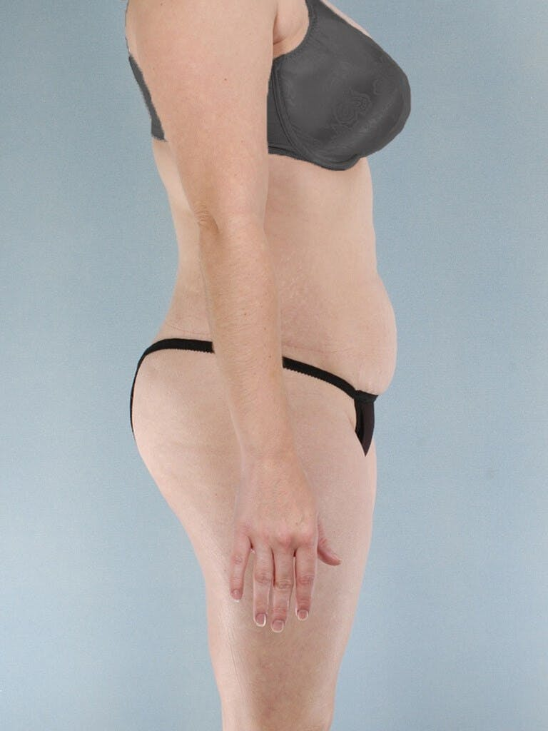 Liposuction Gallery - Patient 20909805 - Image 5