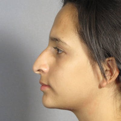 Rhinoplasty Gallery - Patient 20909806 - Image 1
