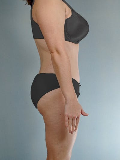 Liposuction Gallery - Patient 20909805 - Image 6