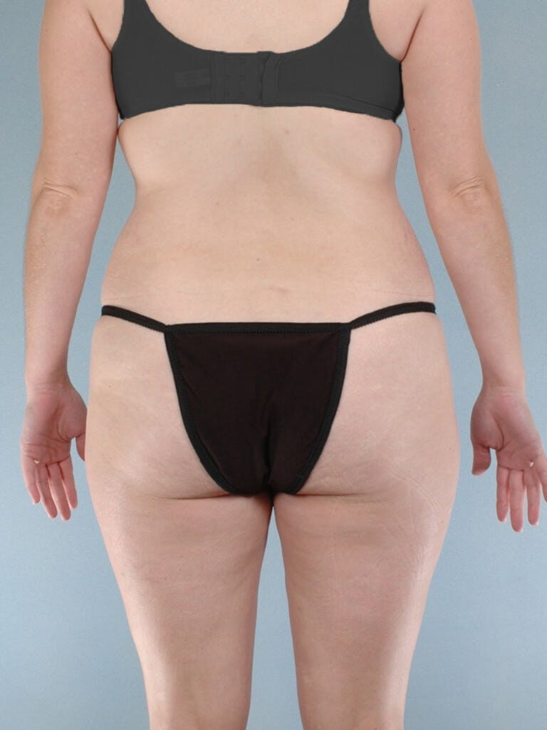 Liposuction Gallery - Patient 20909805 - Image 7