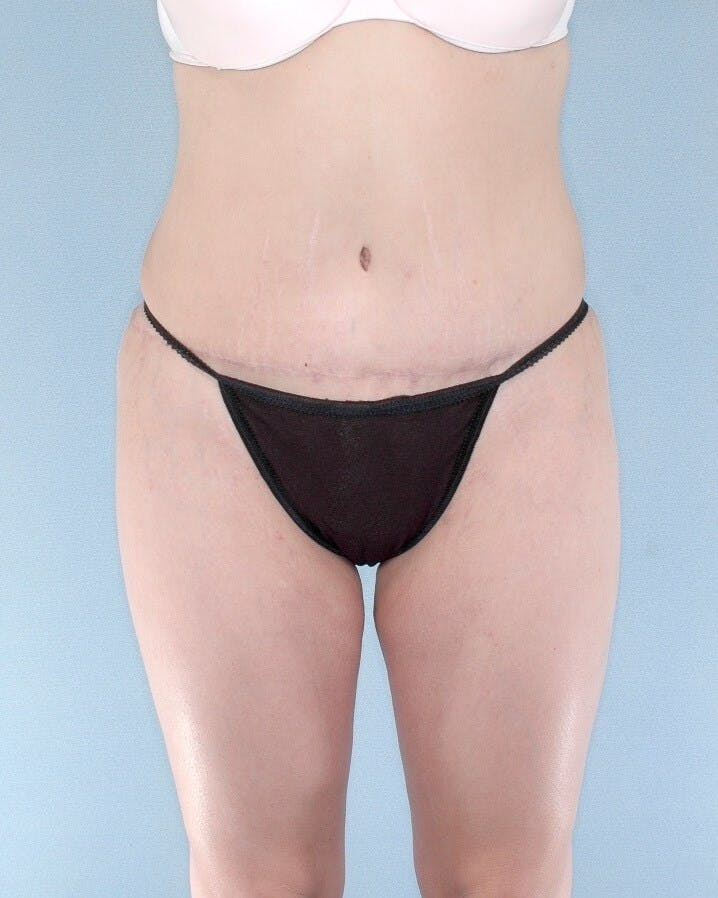 Tummy Tuck Gallery - Patient 20909812 - Image 2