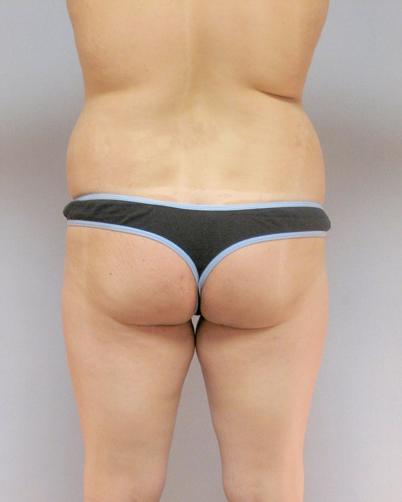 Mommy Makeover Gallery - Patient 20909809 - Image 5
