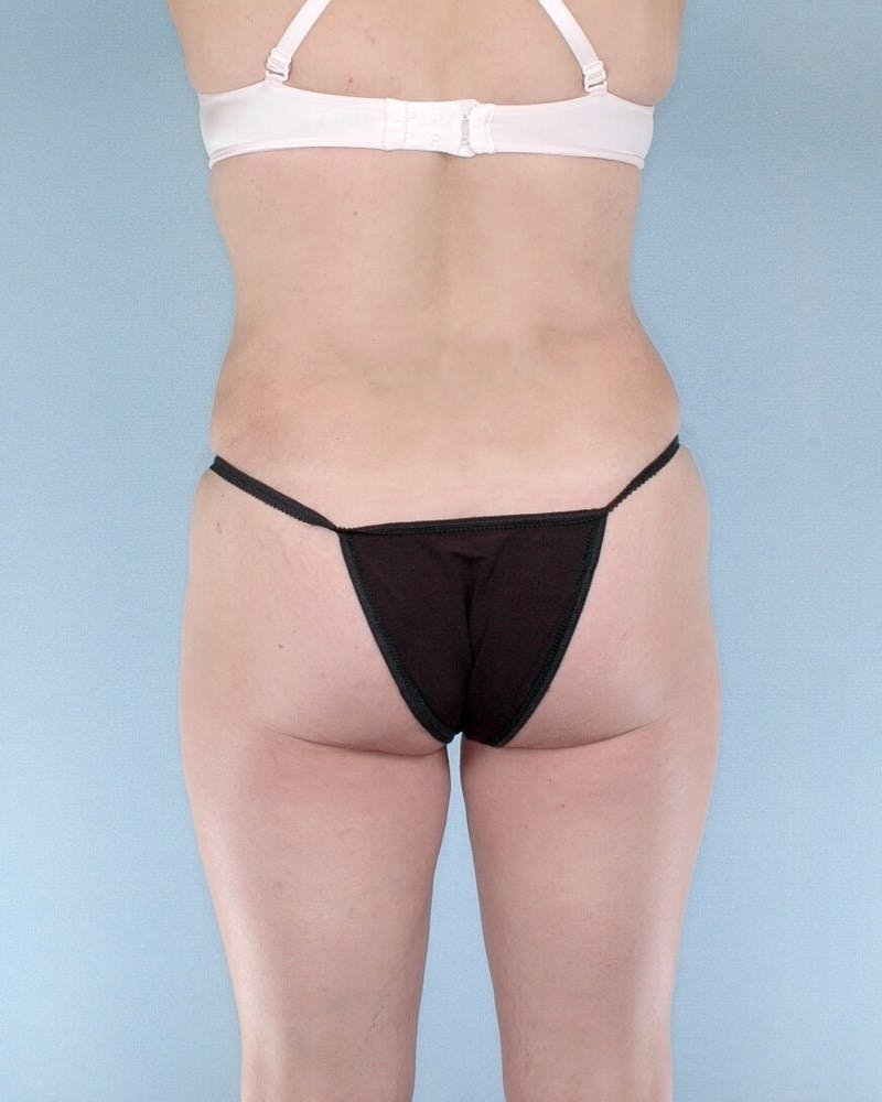 Mommy Makeover Gallery - Patient 20909809 - Image 6