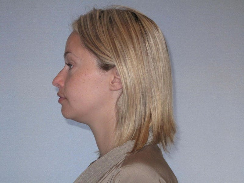 Rhinoplasty Gallery - Patient 20909815 - Image 1
