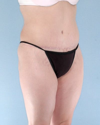 Mommy Makeover Gallery - Patient 20909809 - Image 8