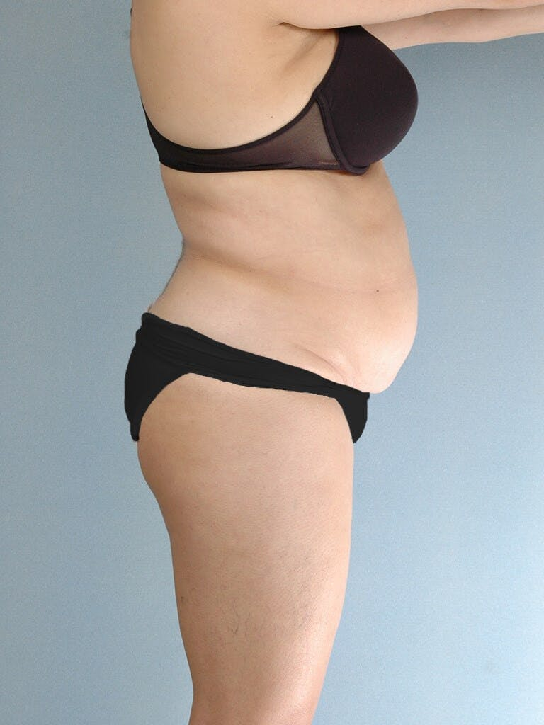 Liposuction Gallery - Patient 20909813 - Image 5