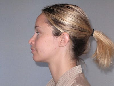 Rhinoplasty Gallery - Patient 20909815 - Image 2