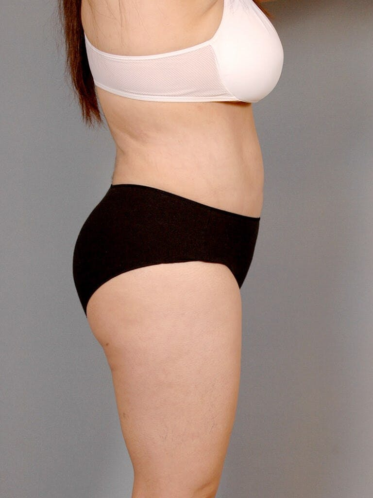 Liposuction Gallery - Patient 20909813 - Image 6