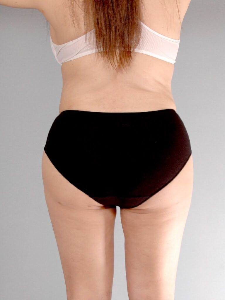 Liposuction Gallery - Patient 20909813 - Image 8