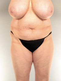 Tummy Tuck Gallery - Patient 20909817 - Image 1