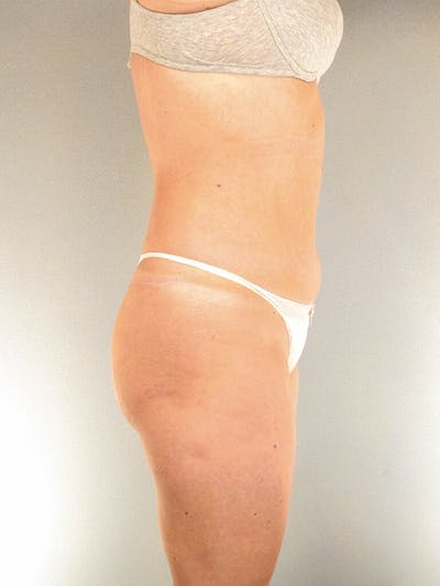 Liposuction Gallery - Patient 20909816 - Image 1