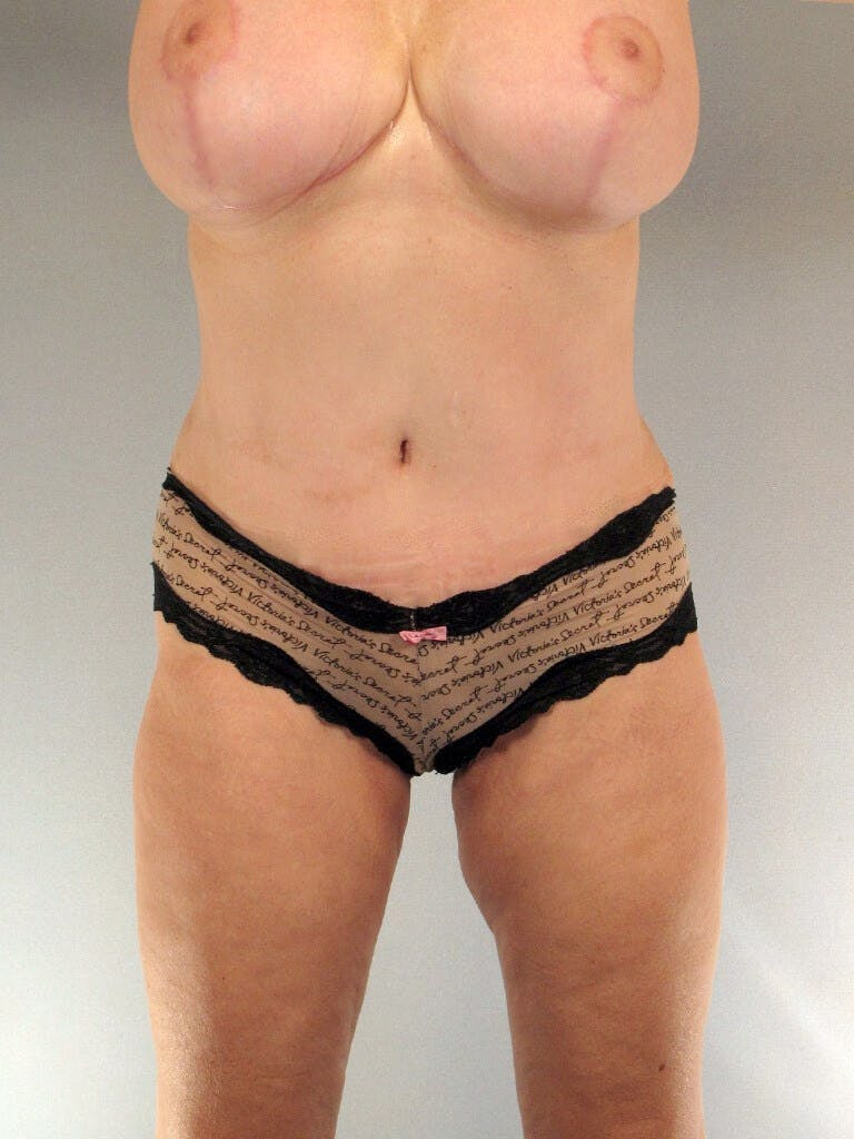 Tummy Tuck Gallery - Patient 20909817 - Image 2